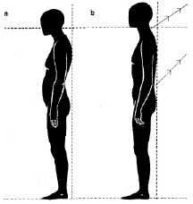 mejorar postura